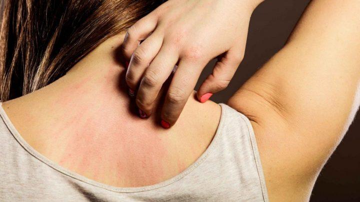 Паратиф: причини захворювання, основні симптоми, лікування і профілактика