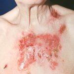 Пемфігус (пухирчатка): причини захворювання, основні симптоми, лікування і профілактика
