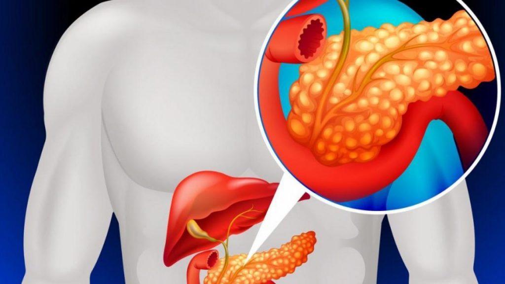Алкогольний панкреатит: причини захворювання, основні симптоми, лікування і профілактика
