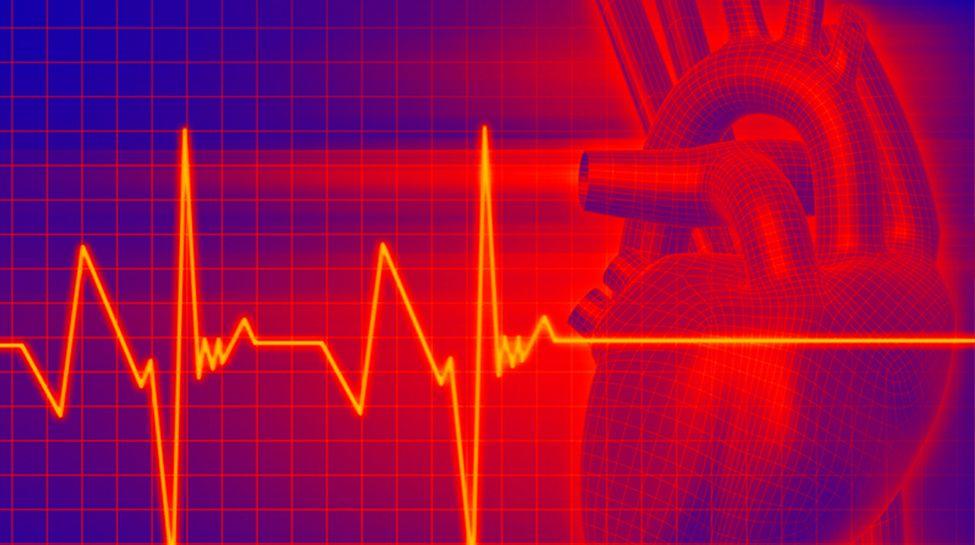 Надшлуночкова пароксизмальна тахікардія: причини захворювання, основні симптоми, лікування і профілактика