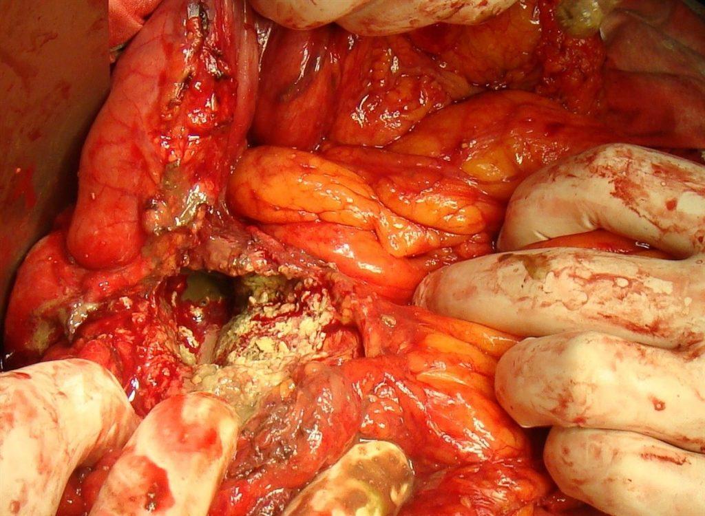 Гнійний панкреатит: лікування і профілактика