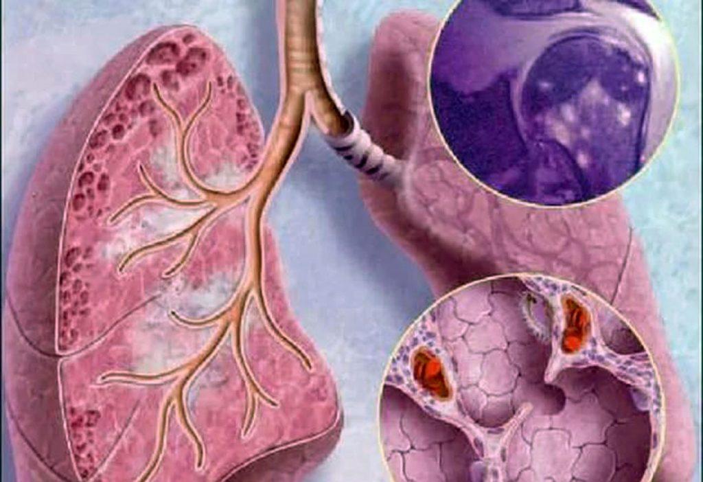 Саркоїдоз: причини захворювання, основні симптоми, лікування і профілактика