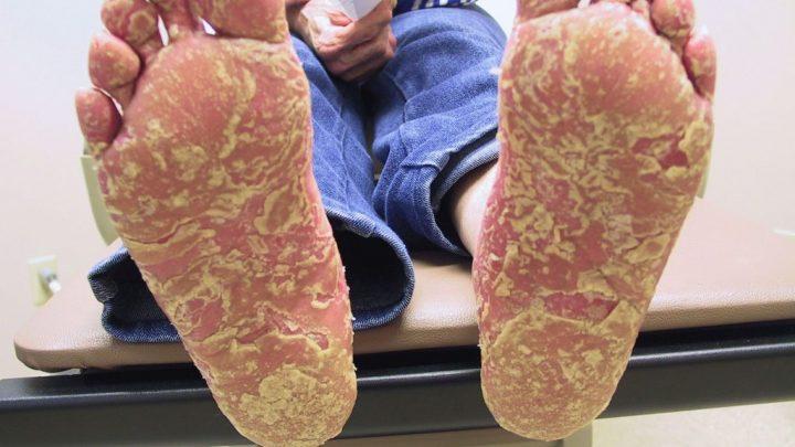 Синдром Рейтера: причини захворювання, основні симптоми, лікування і профілактика