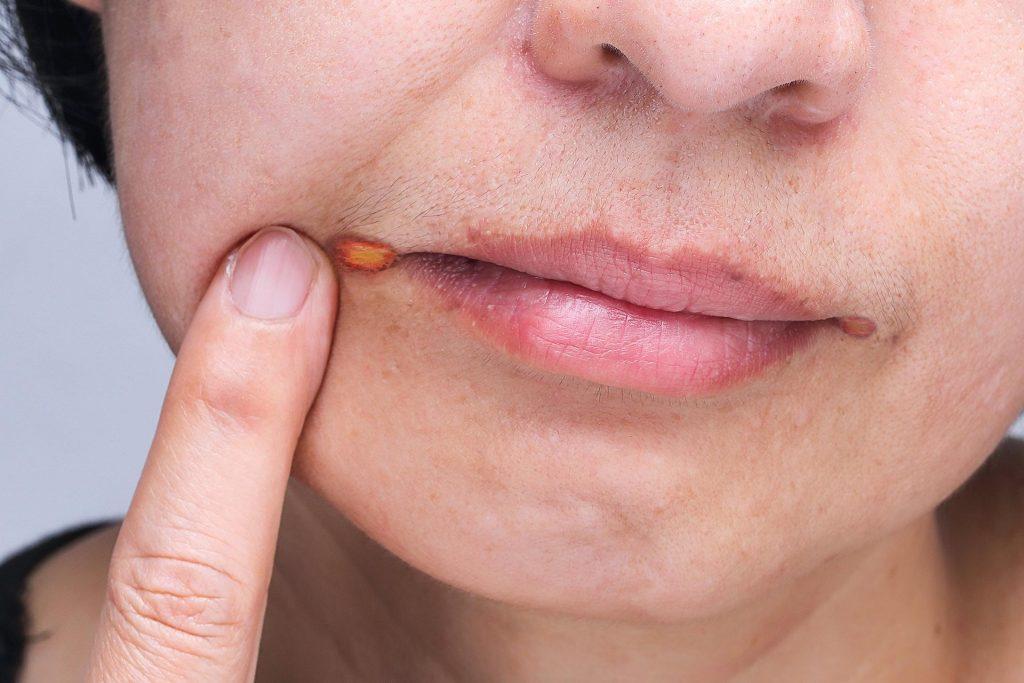 Гландулярний хейліт: причини захворювання, основні симптоми, лікування і профілактика