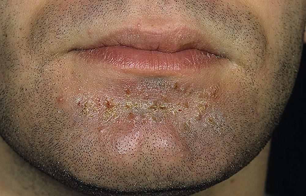 Сикоз: причини захворювання, основні симптоми, лікування і профілактика
