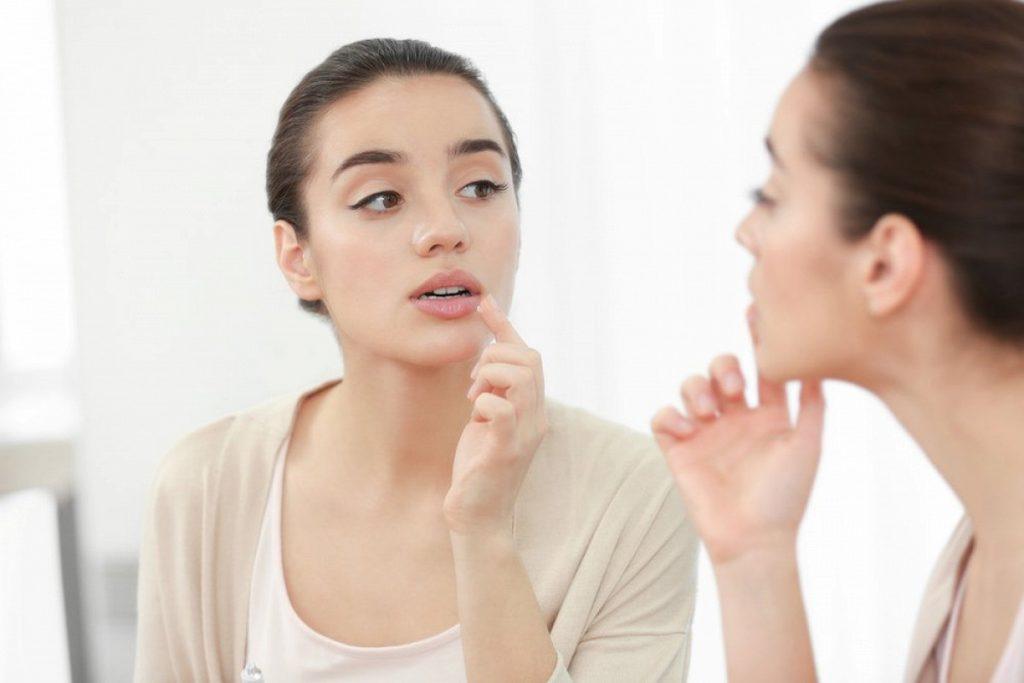 Хейліт на губах - класифікація, лікування