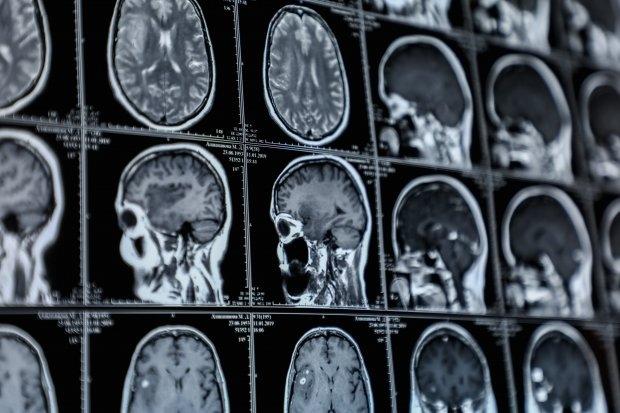 Дисциркуляторна енцефалопатія: причини захворювання, основні симптоми, лікування і профілактика