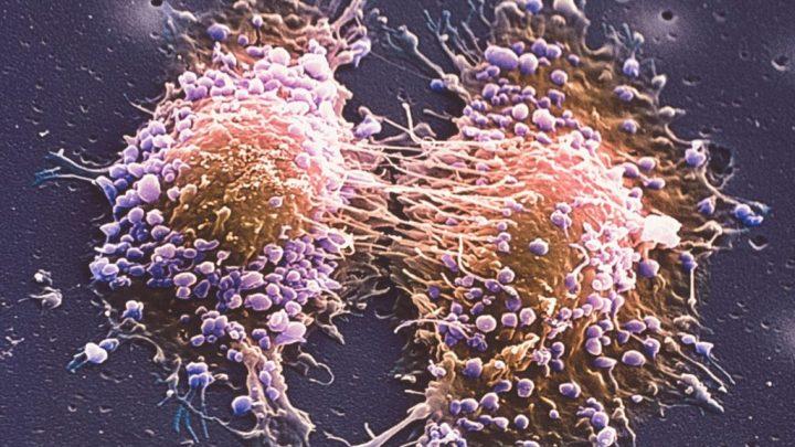 Соматостатинома: причини захворювання, основні симптоми, лікування і профілактика