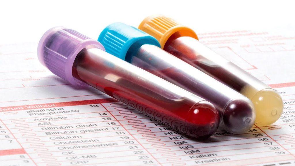 Цитомегаловірусна інфекція: причини захворювання, основні симптоми, лікування і профілактика
