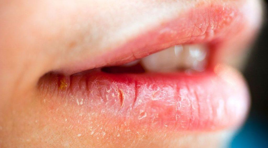 Атопический хейлит: причины заболевания, основные симптомы, лечение и профилактика