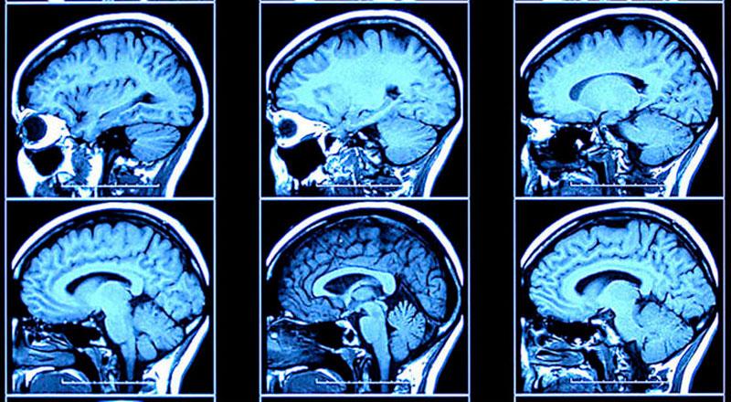 Токсична енцефалопатія: причини захворювання, основні симптоми, лікування і профілактика