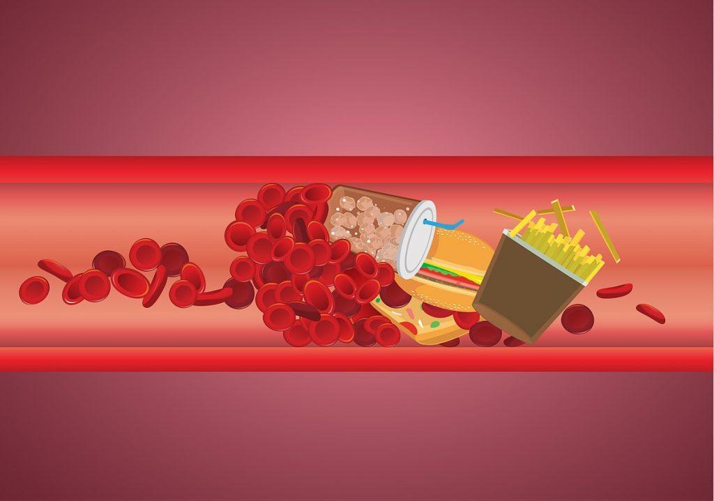 Підвищений холестерин у худих - як таке можливо?