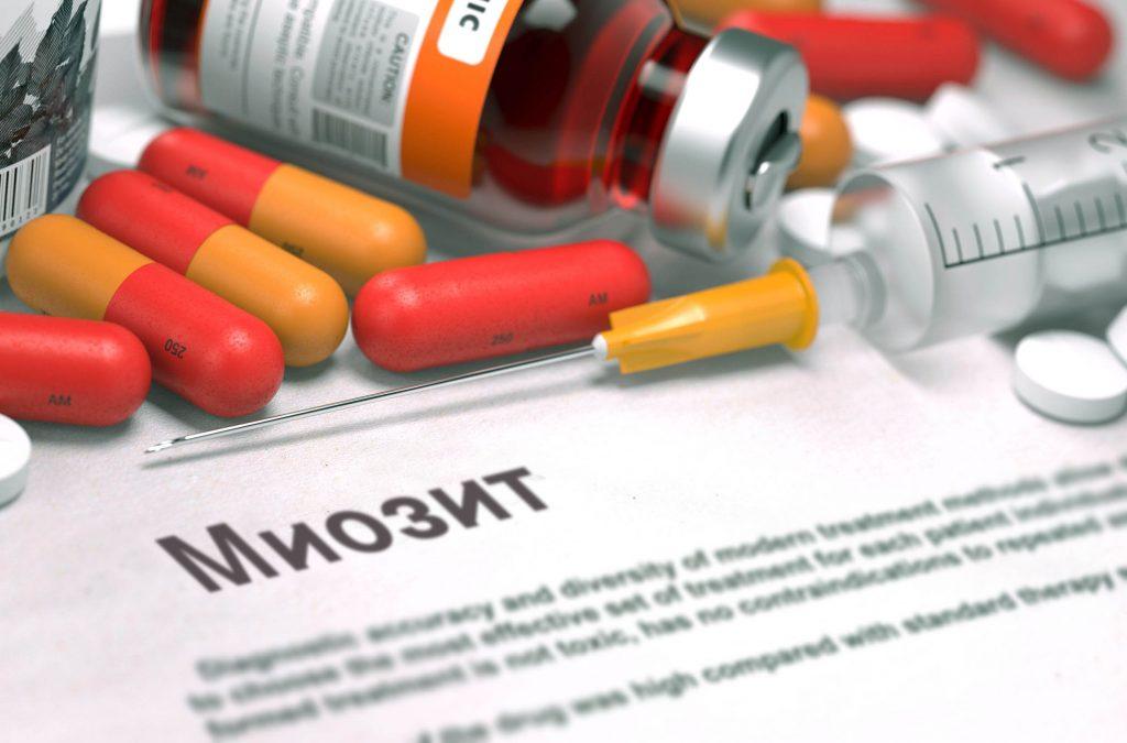 Міозит шиї - симптоми, лікування
