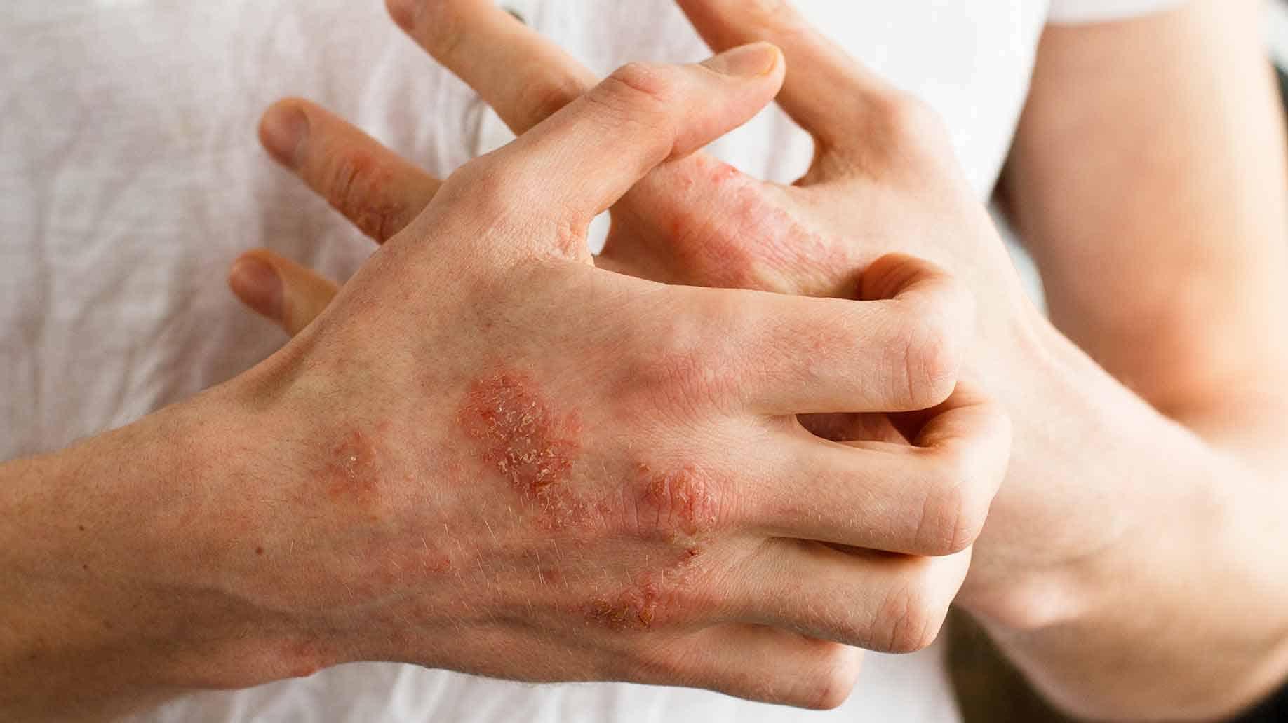 Алергія на продукти і непереносимість їжі