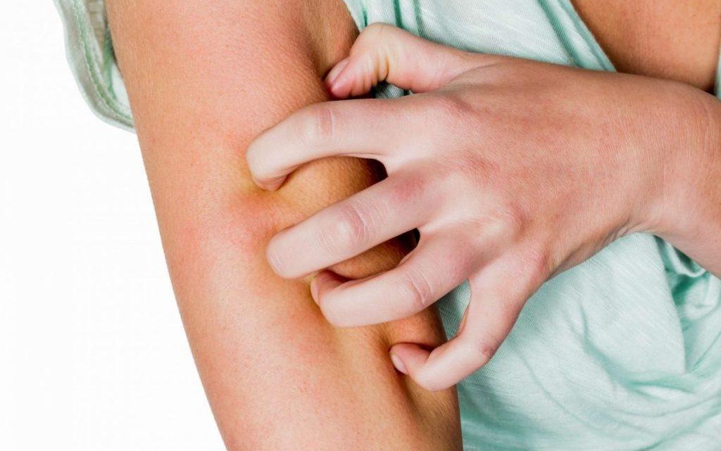 Непереносимість або алергія