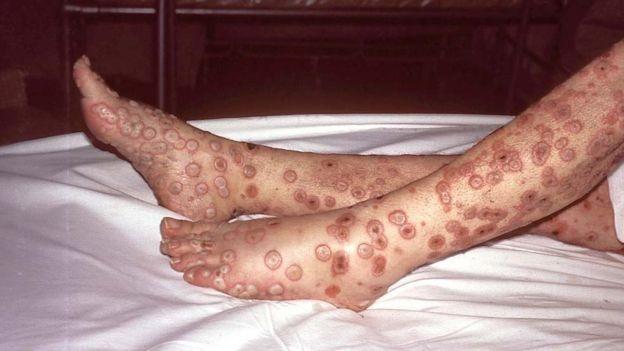 Віспа: причини захворювання, основні симптоми, лікування і профілактика