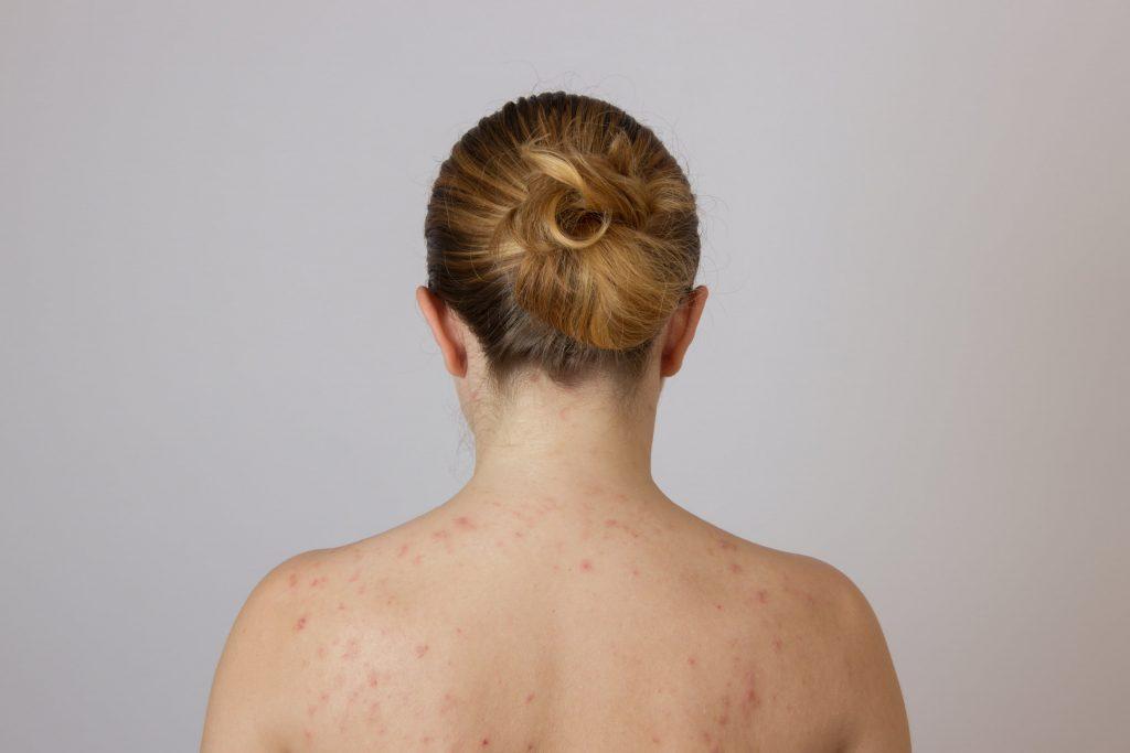 Актініческій кератоз: причини захворювання