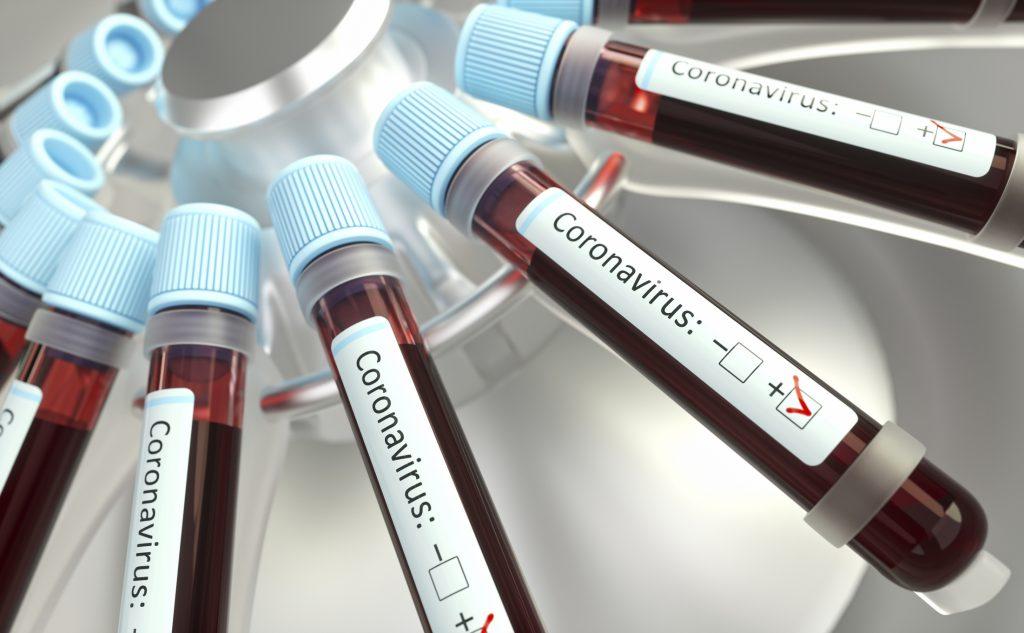 Коронавірус в Україні. Як використовують експрес-тести