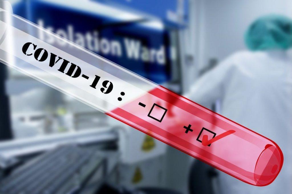 Перші експрес-тести на коронавірус