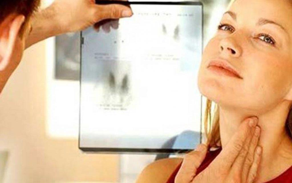 Аутоімунний тиреоїдит: причини захворювання, основні симптоми, лікування і профілактика