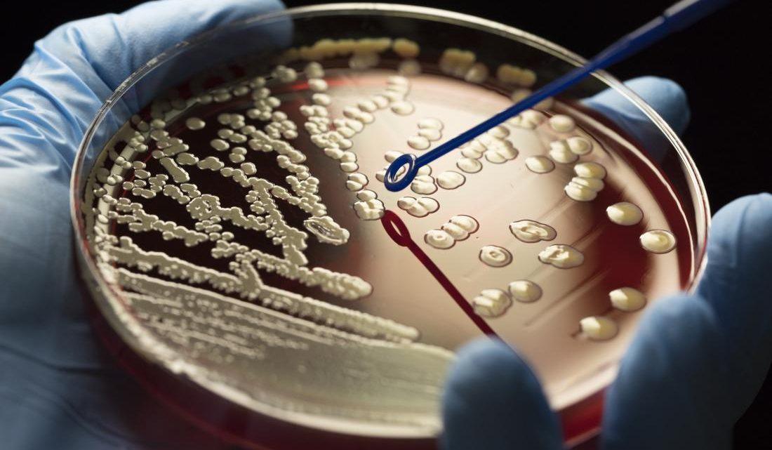 Бактерії виявляють стійкість до антибіотиків. Що робити