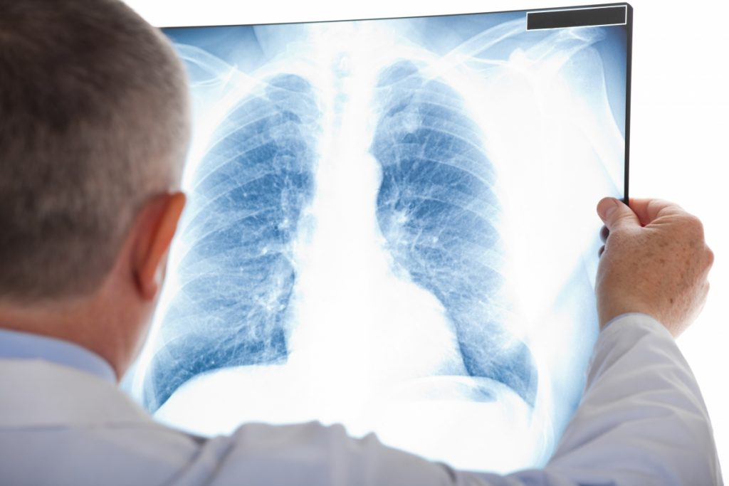 Вірусна пневмонія: що це таке, основні симптоми і лікування
