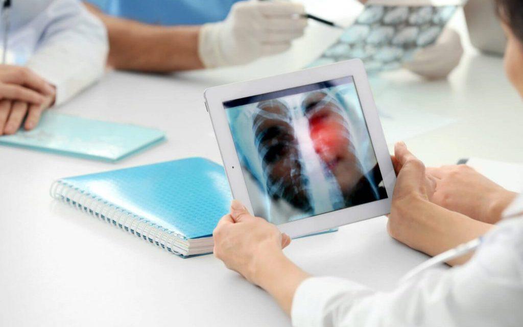 Аналіз перебігу та лікування пневмонії у хворого на цукровий діабет