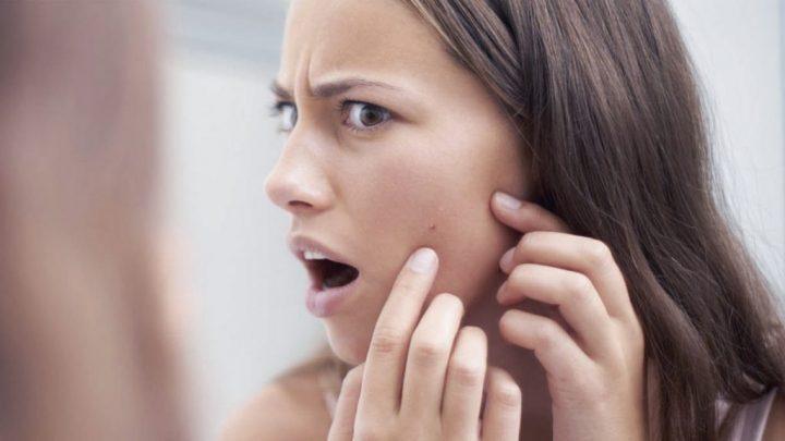 Проблемна шкіра обличчя: як лікувати акне і гормональні порушення