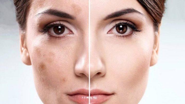 Порушення пігментації шкіри – ознаки, симптоми