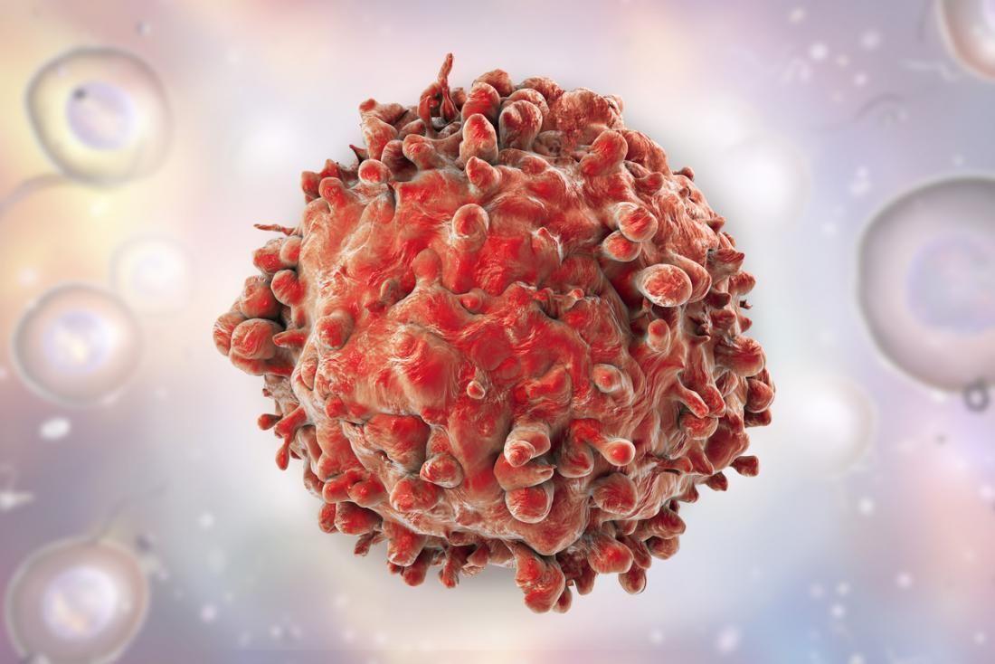 Симптоми раку шкіри і методи його діагностики