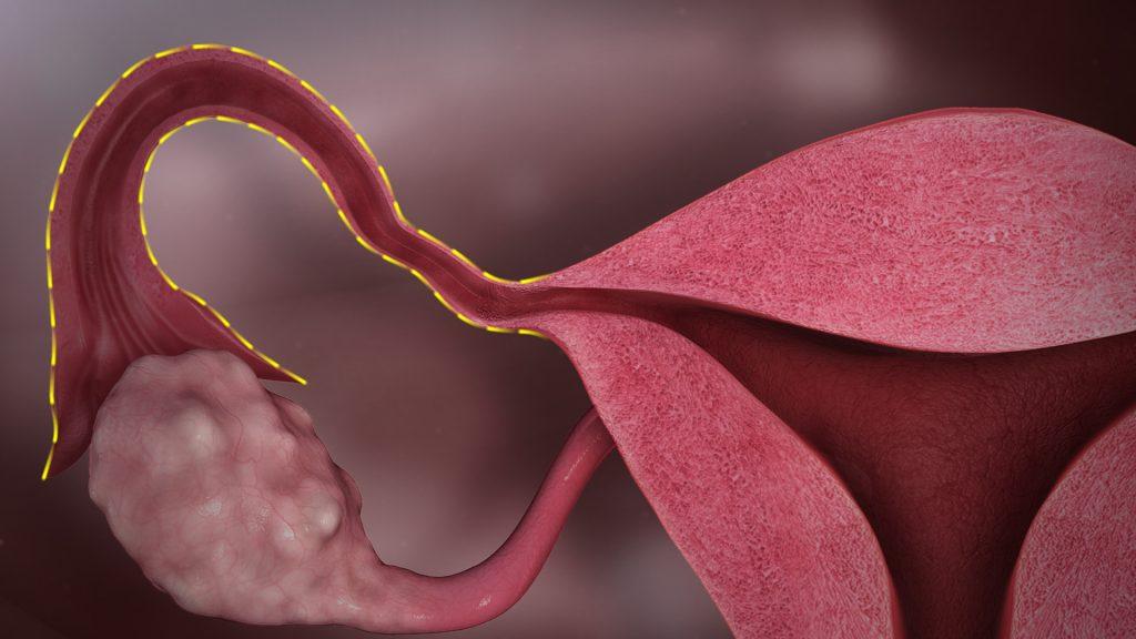 Непрохідність маткових труб. Причини, симптоми, діагностика