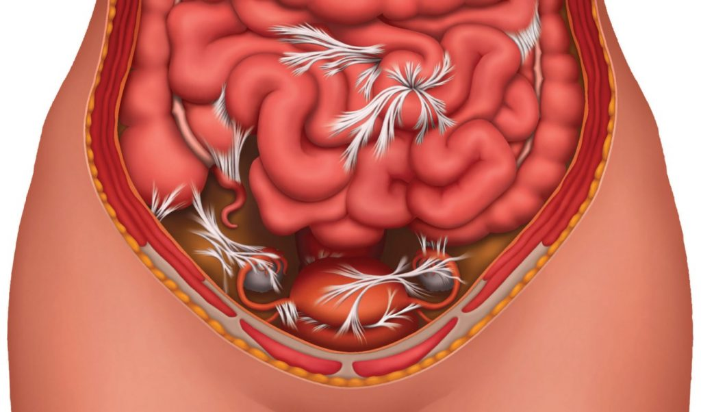 Спайкова хвороба - наслідки операції