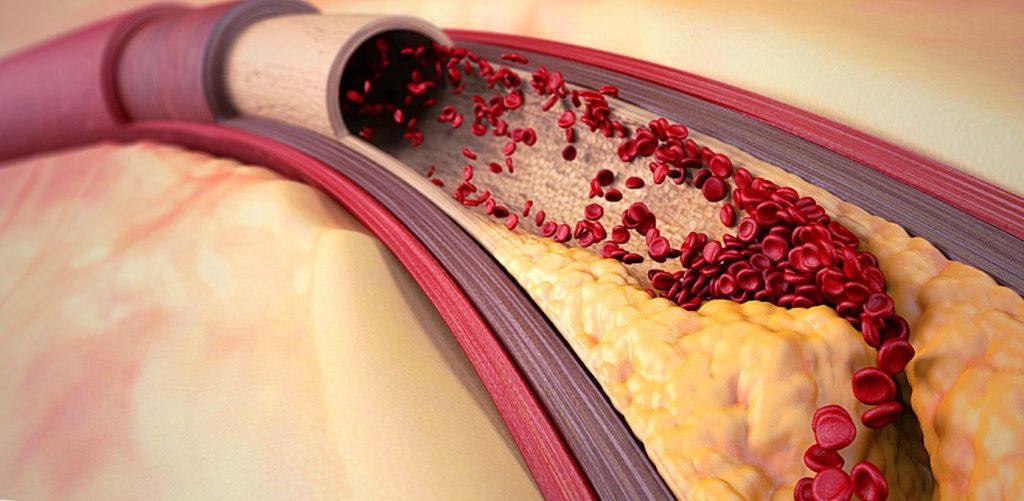 Профілактика і лікування атеросклерозу