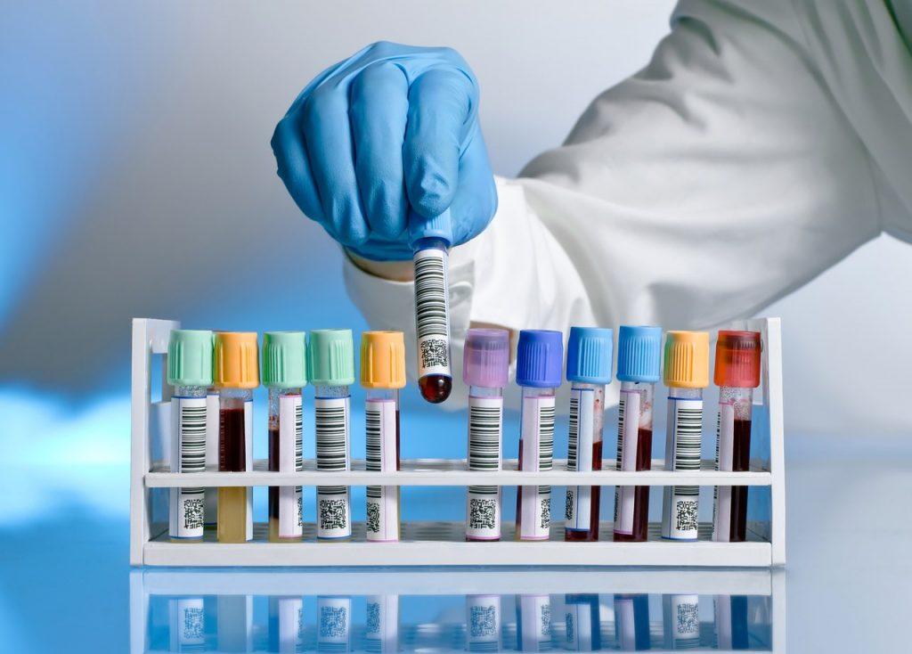 Синдром Аарскога-Скотта: причини захворювання, основні симптоми, лікування і профілактика