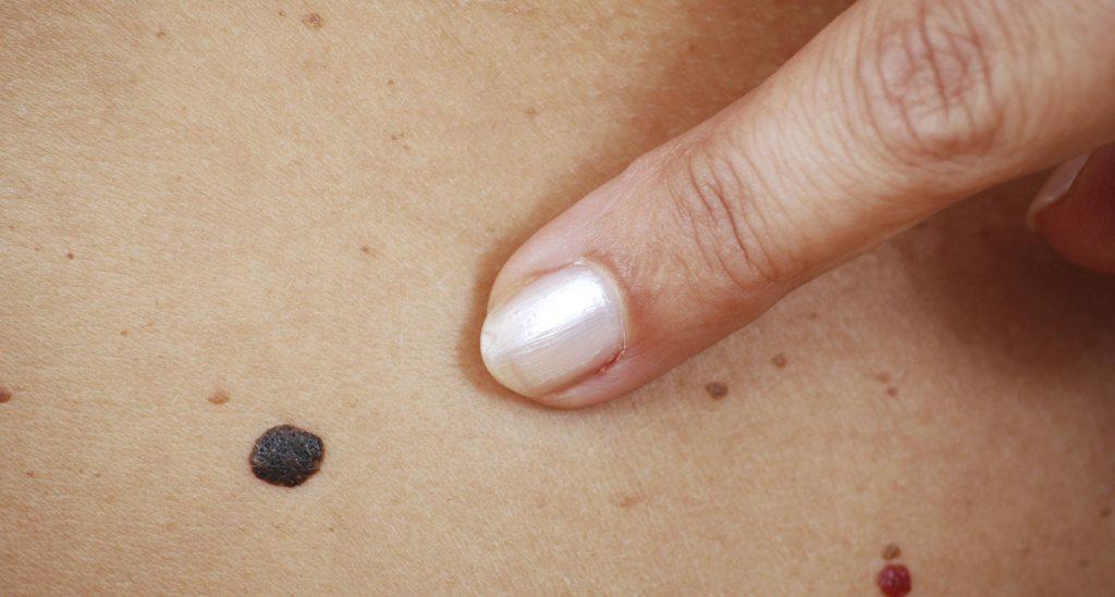 Меланома шкіри: діагностика і симптоми