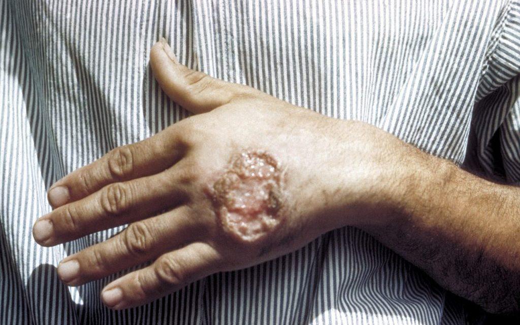 Лейшманіоз – симптоми і заходи профілактики