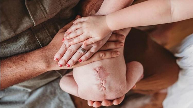 Спина біфідо (розщеплення хребта) – лікування