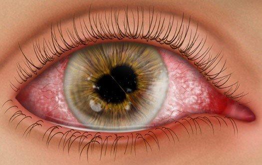 Увеїт очей, причини, симптоми, діагностика та лікування