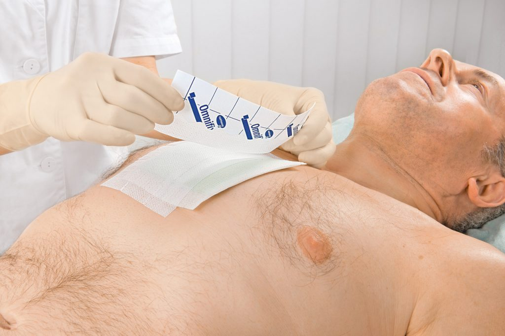 Післяопераційні рани: правила і особливості догляду