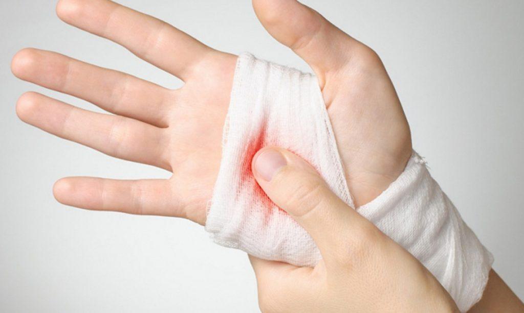Внутрішня кровотеча: що робити, причини, ознаки