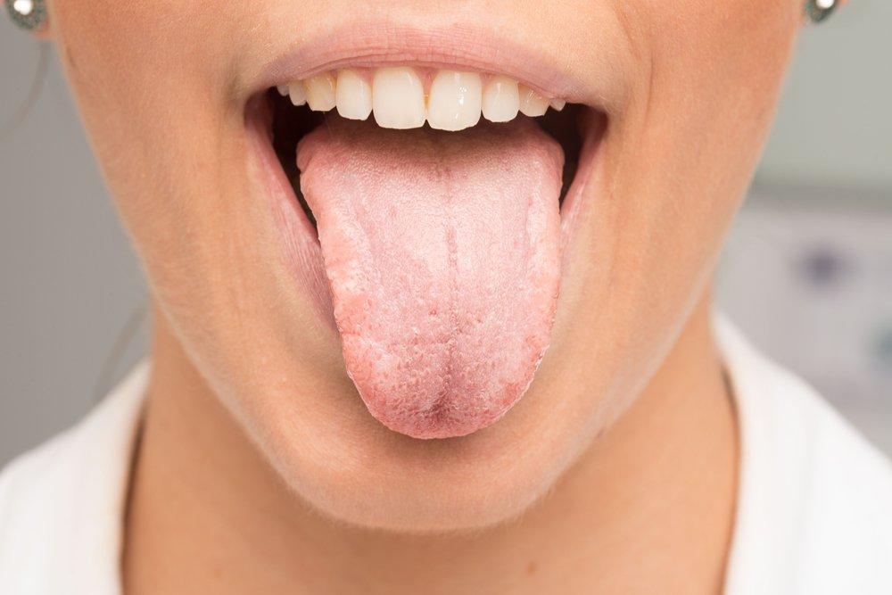 Галітоз: як позбутися неприємного запаху з рота?
