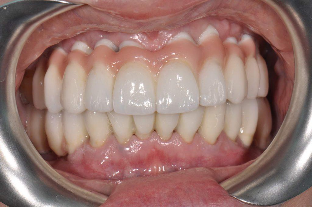 Рухомий зуб - що робити для лікування рухливих зубів