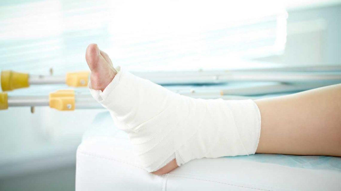 Розтягнення зв'язок і м'язів нижніх кінцівок. Що робити, як лікувати?