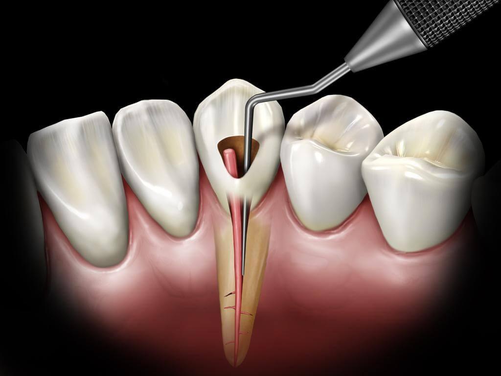 Симптоми і лікування гранульоми і кісти зуба