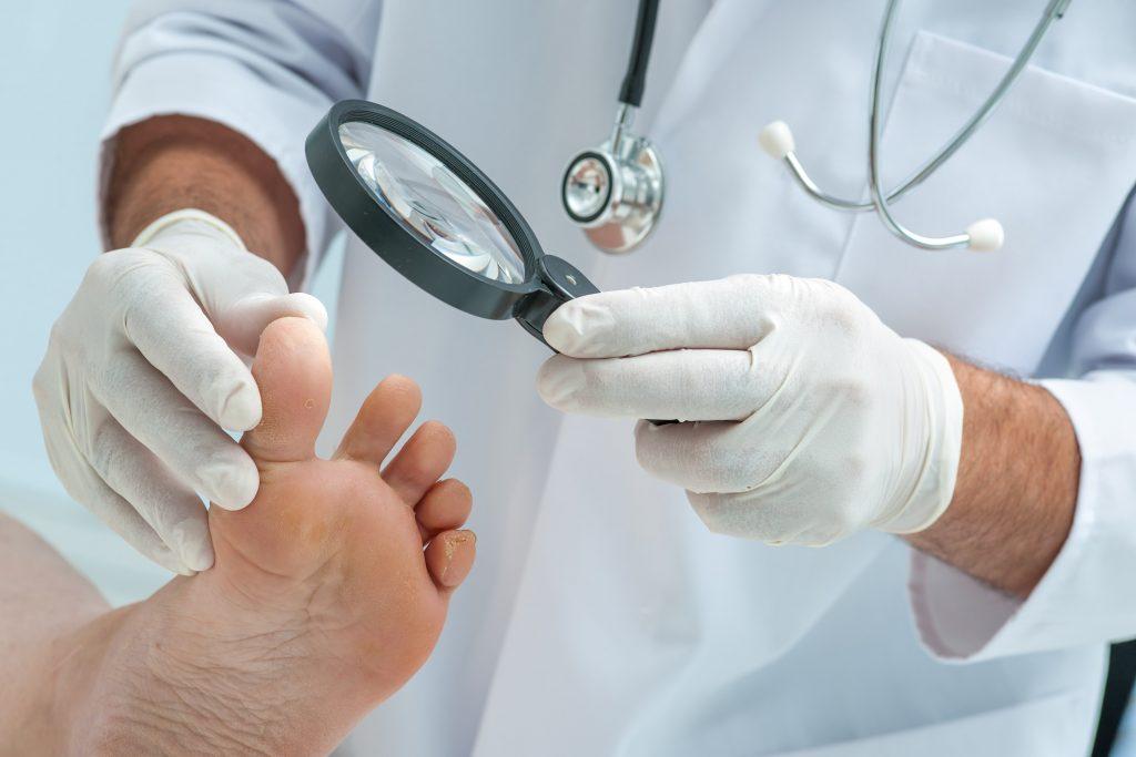 Діагностика та лікування синдрому діабетичної стопи