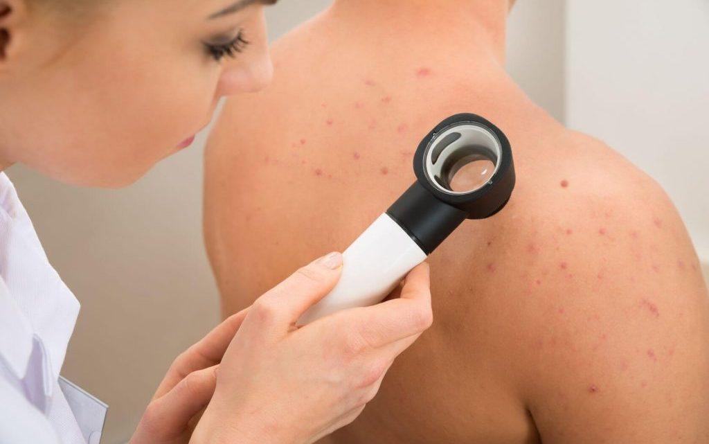 Висипання на шкірі – причини, хвороби, діагностика