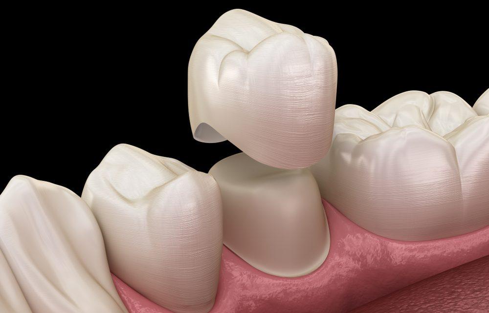 Болить зуб під коронкою – що робити, причини