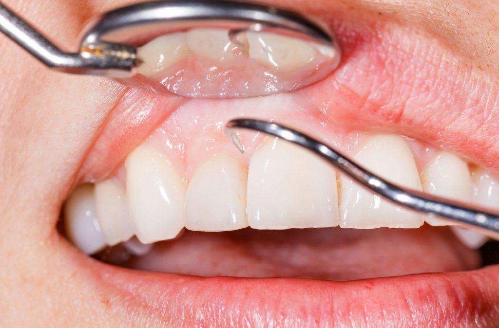 Травми зубів: причини, види, лікування, профілактика