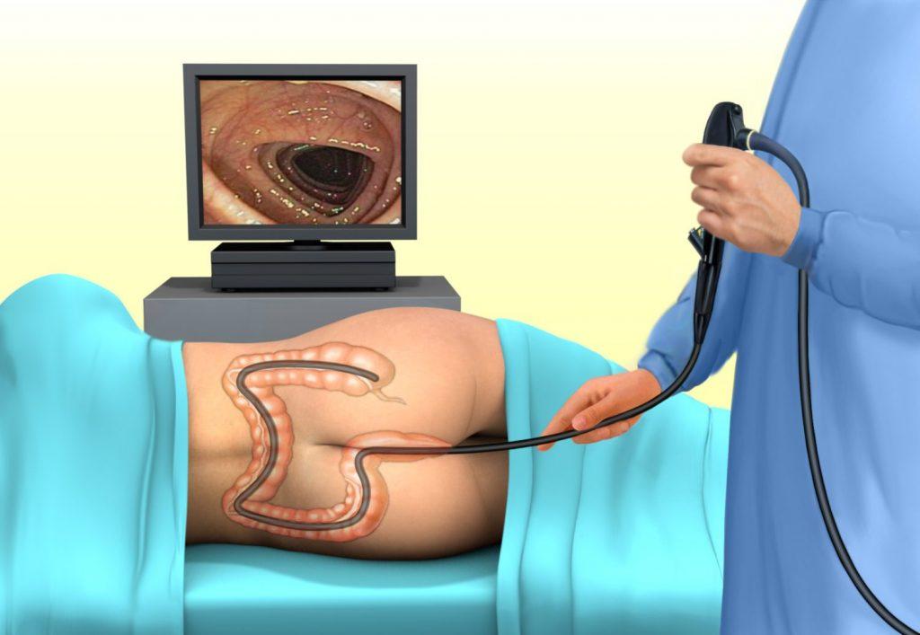 Анальна тріщина - симптоми, лікування