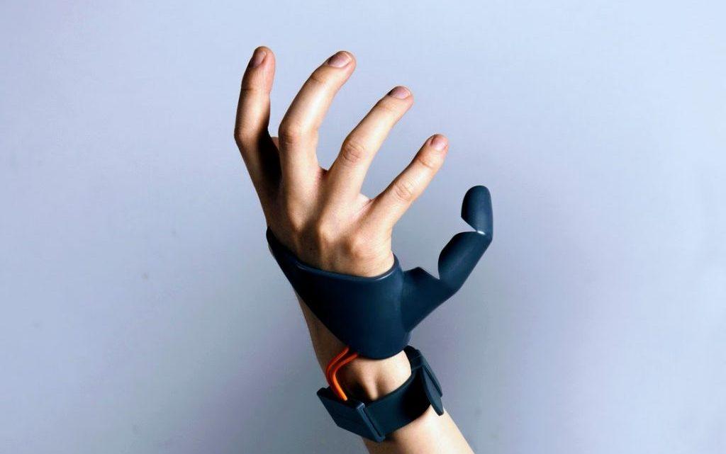 Реплантація пальців і сегментів кінцівок